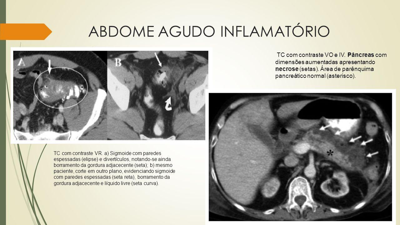 ABDOME AGUDO INFLAMATÓRIO TC com contraste VR. a) Sigmoide com paredes espessadas (elipse) e divertículos, notando-se ainda borramento da gordura adja