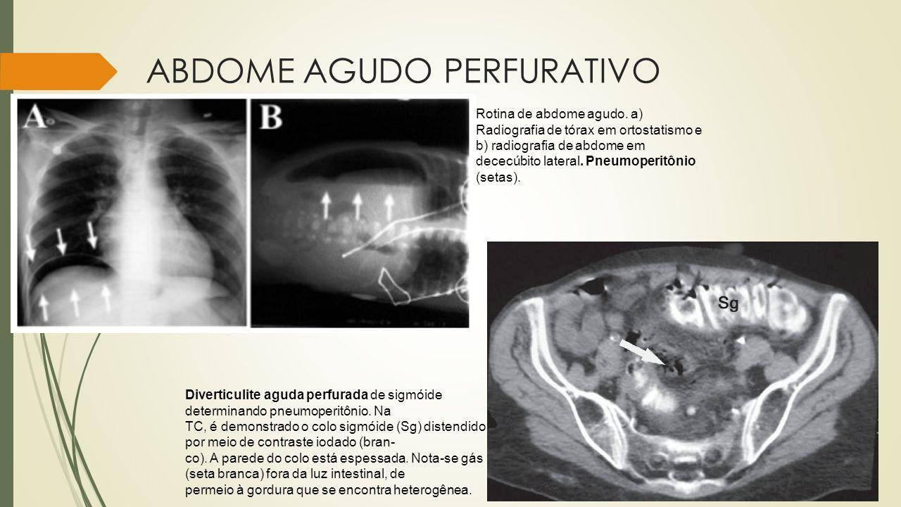 ABDOME AGUDO PERFURATIVO Diverticulite aguda perfurada de sigmóide determinando pneumoperitônio. Na TC, é demonstrado o colo sigmóide (Sg) distendido
