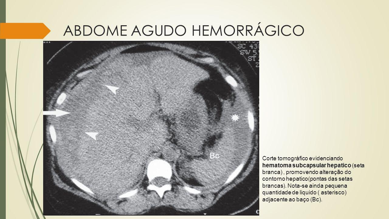 ABDOME AGUDO HEMORRÁGICO Corte tomográfico evidenciando hematoma subcapsular hepatico (seta branca), promovendo alteração do contorno hepatico(pontas