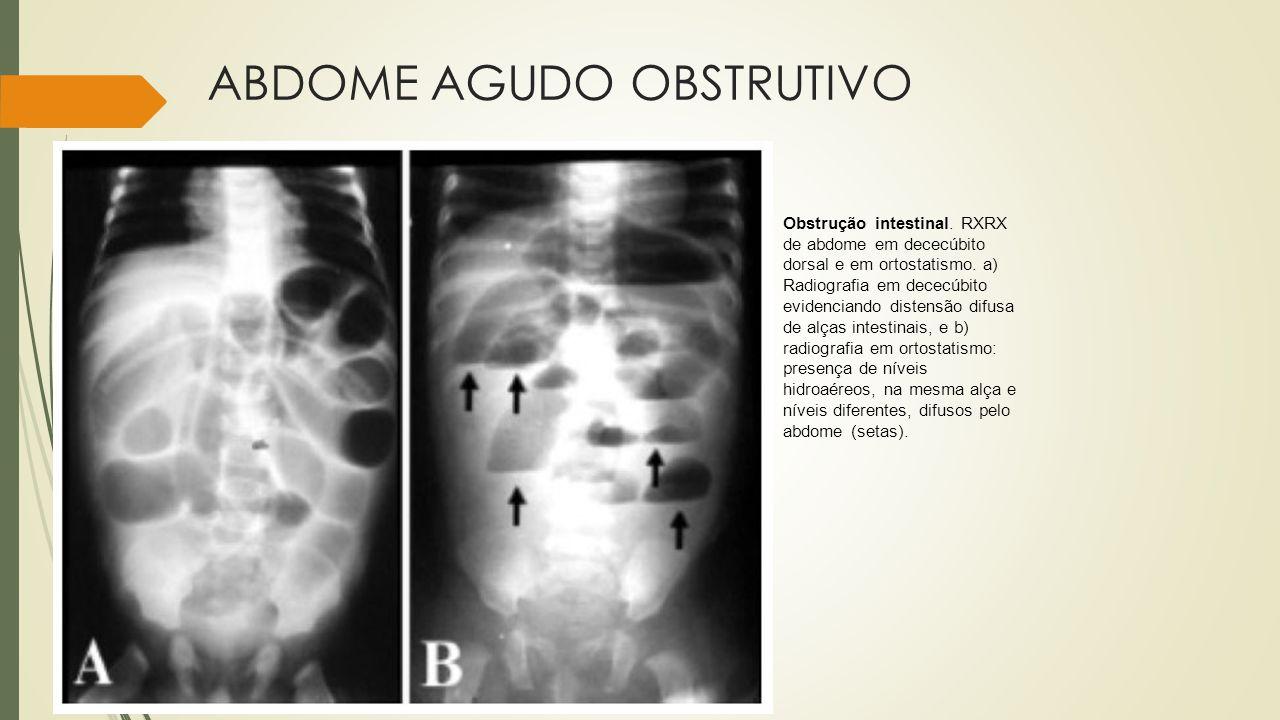 ABDOME AGUDO OBSTRUTIVO Obstrução intestinal. RXRX de abdome em dececúbito dorsal e em ortostatismo. a) Radiografia em dececúbito evidenciando distens