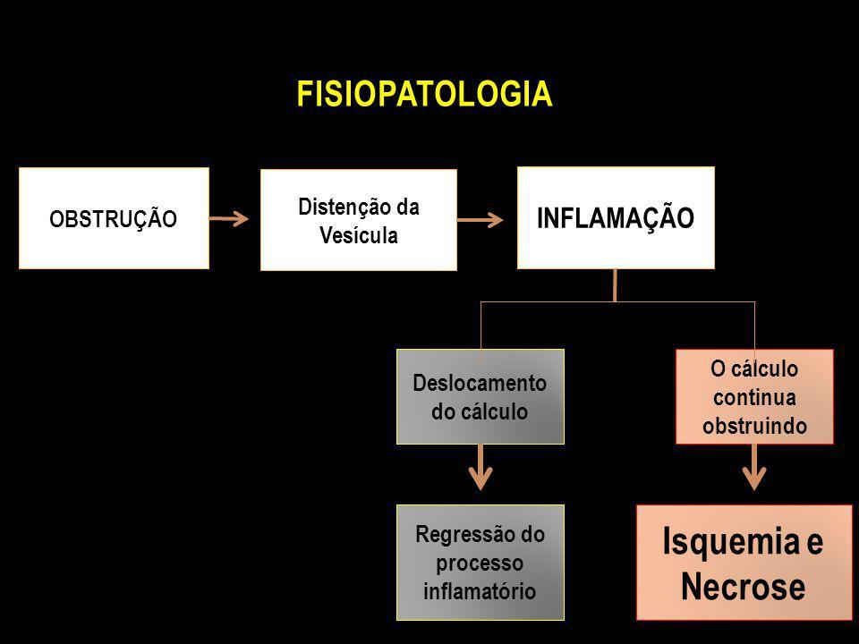 FISIOPATOLOGIA OBSTRUÇÃO Distenção da Vesícula INFLAMAÇÃO Deslocamento do cálculo O cálculo continua obstruindo Regressão do processo inflamatório Isq
