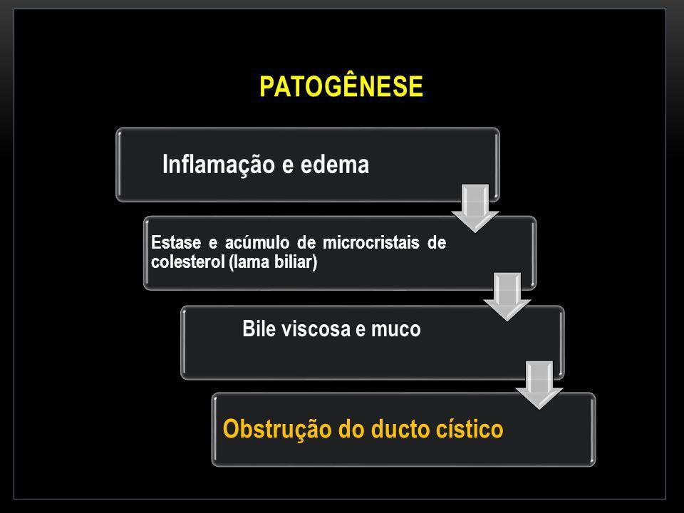 PATOGÊNESE Inflamação e edema Estase e acúmulo de microcristais de colesterol (lama biliar) Bile viscosa e muco Obstrução do ducto cístico