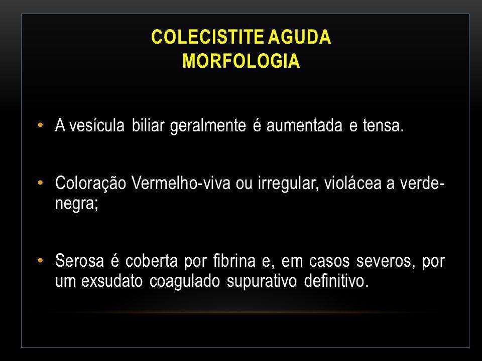 COLECISTITE AGUDA MORFOLOGIA A vesícula biliar geralmente é aumentada e tensa. Coloração Vermelho-viva ou irregular, violácea a verde- negra; Serosa é
