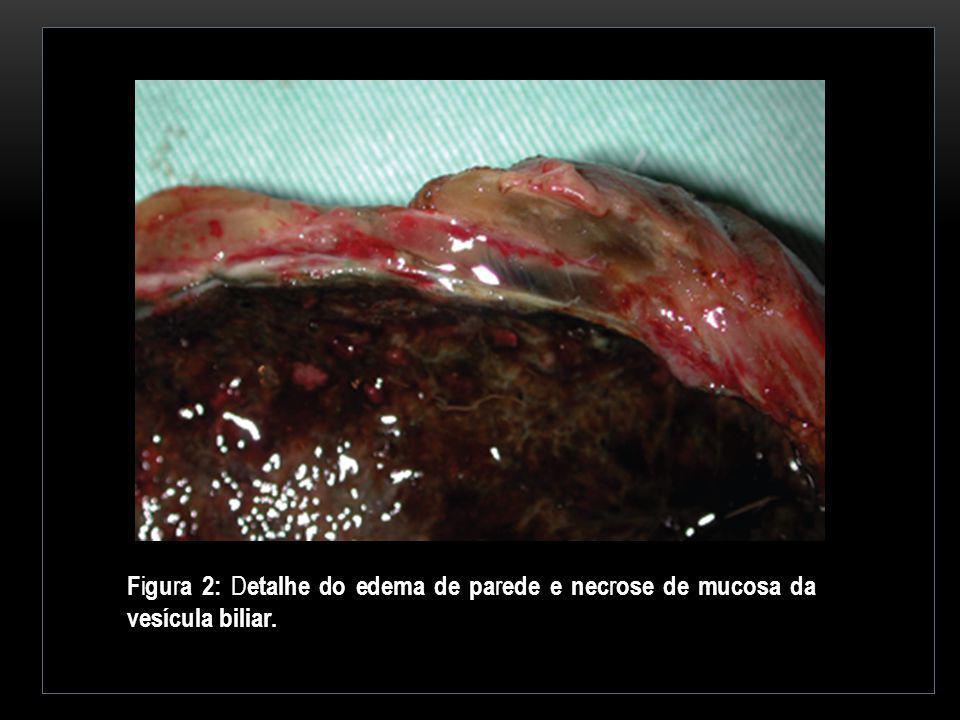 F i gu r a 2: D etalhe do edema de pa r ede e nec r ose de mucosa da vesícula biliar.