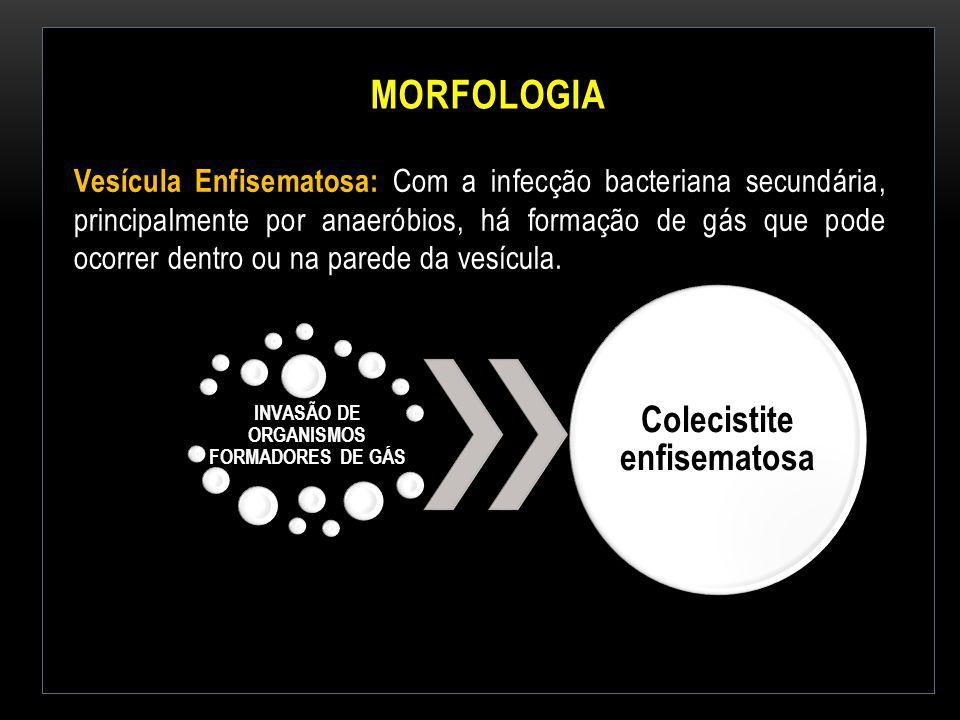 MORFOLOGIA Vesícula Enfisematosa: Com a infecção bacteriana secundária, principalmente por anaeróbios, há formação de gás que pode ocorrer dentro ou n
