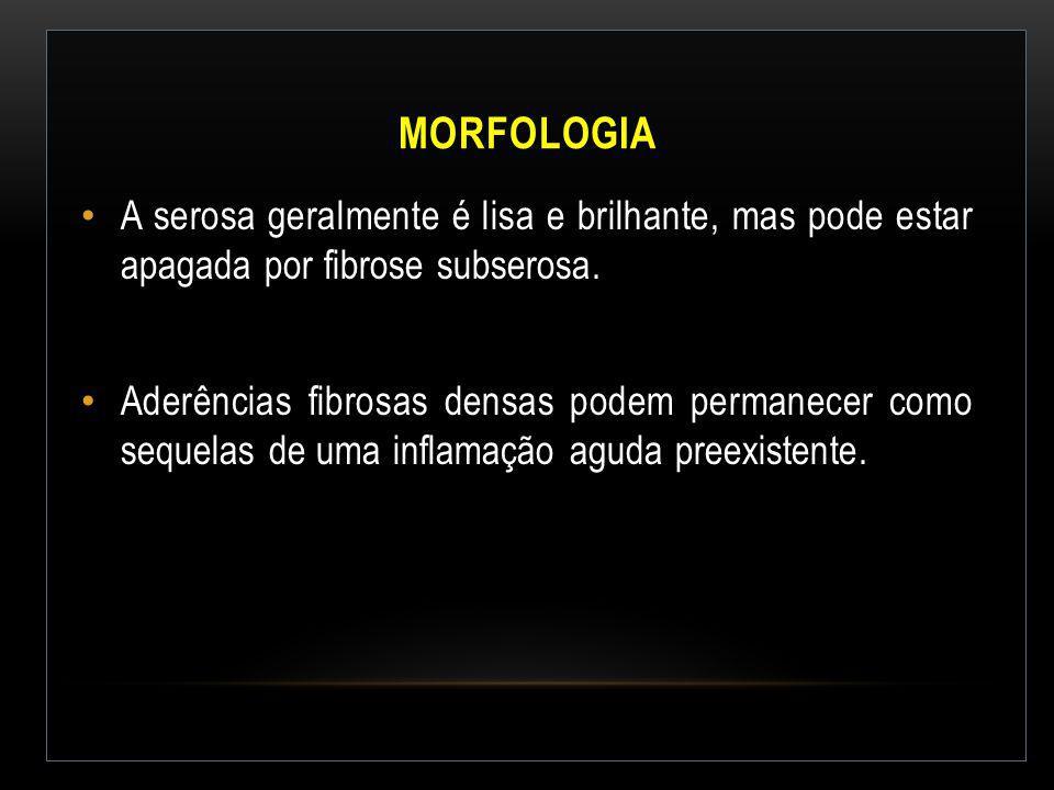 MORFOLOGIA A serosa geralmente é lisa e brilhante, mas pode estar apagada por fibrose subserosa. Aderências fibrosas densas podem permanecer como sequ