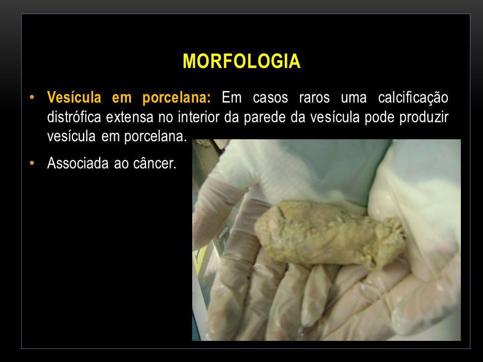 MORFOLOGIA Vesícula em porcelana: Em casos raros uma calcificação distrófica extensa no interior da parede da vesícula pode produzir vesícula em porce