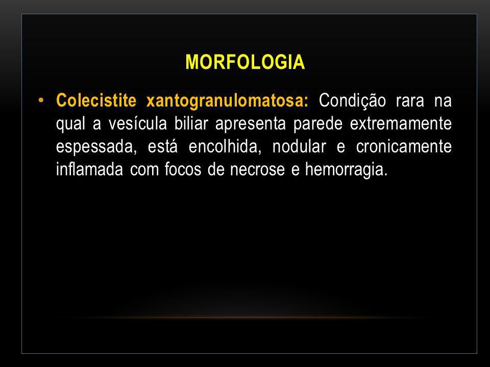 MORFOLOGIA Colecistite xantogranulomatosa: Condição rara na qual a vesícula biliar apresenta parede extremamente espessada, está encolhida, nodular e