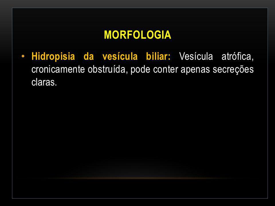 MORFOLOGIA Hidropisia da vesícula biliar: Vesícula atrófica, cronicamente obstruída, pode conter apenas secreções claras.