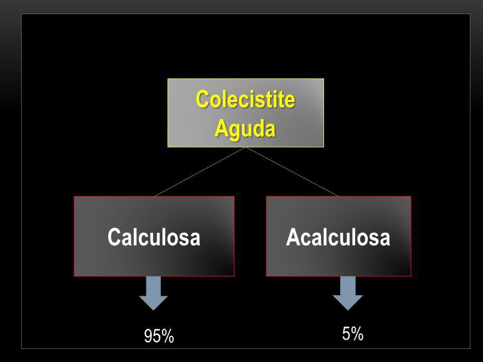 Colecistite Aguda Calculosa Acalculosa 95% 5%