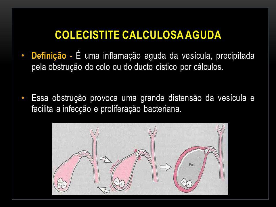 COLECISTITE CALCULOSA AGUDA Definição - É uma inflamação aguda da vesícula, precipitada pela obstrução do colo ou do ducto cístico por cálculos. Essa
