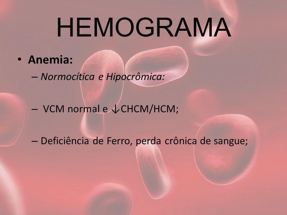 HEMOGRAMA Anemia: – Normocítica e Hipocrômica: – VCM normal e CHCM/HCM; – Deficiência de Ferro, perda crônica de sangue;