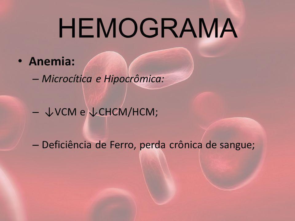 HEMOGRAMA Anemia: – Microcítica e Hipocrômica: – VCM e CHCM/HCM; – Deficiência de Ferro, perda crônica de sangue;