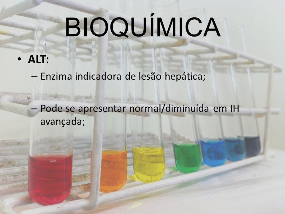 BIOQUÍMICA ALT: – Enzima indicadora de lesão hepática; – Pode se apresentar normal/diminuída em IH avançada;