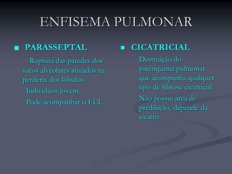 ENFISEMA PULMONAR PARASSEPTAL PARASSEPTAL - Ruptura das paredes dos sacos alveolares situados na periferia dos lóbulos. - Ruptura das paredes dos saco