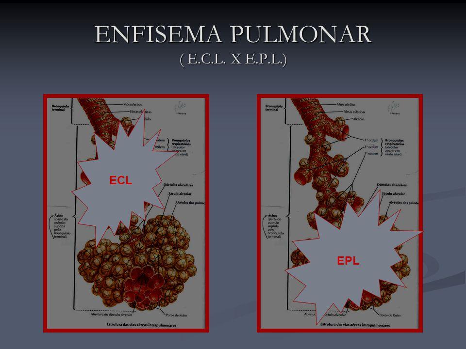 ENFISEMA PULMONAR ( E.C.L. X E.P.L.) ECL EPL