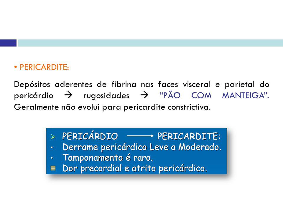 PERICARDITE: Depósitos aderentes de fibrina nas faces visceral e parietal do pericárdio rugosidades PÃO COM MANTEIGA.