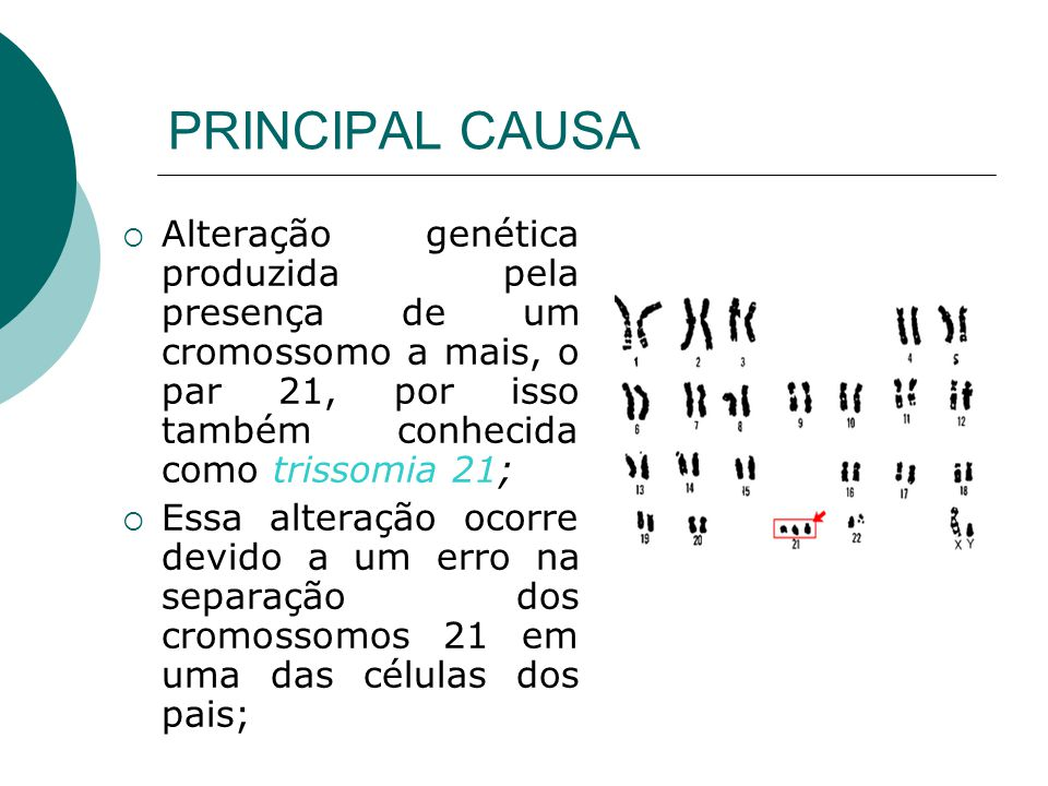 PRINCIPAL CAUSA Alteração genética produzida pela presença de um cromossomo a mais, o par 21, por isso também conhecida como trissomia 21; Essa altera