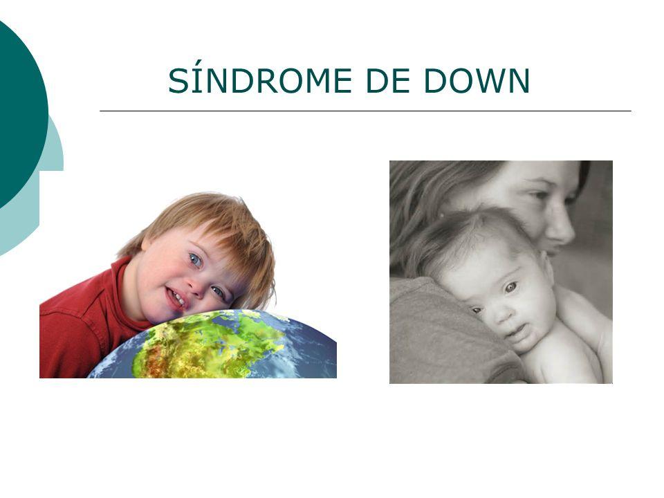 PRINCIPAL CAUSA Alteração genética produzida pela presença de um cromossomo a mais, o par 21, por isso também conhecida como trissomia 21; Essa alteração ocorre devido a um erro na separação dos cromossomos 21 em uma das células dos pais;