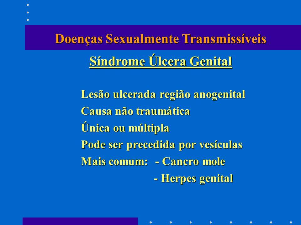 Lesão ulcerada região anogenital Causa não traumática Única ou múltipla Pode ser precedida por vesículas Mais comum: - Cancro mole - Herpes genital -