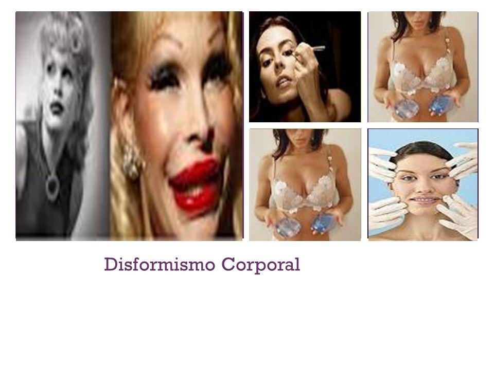 + Disformismo Corporal