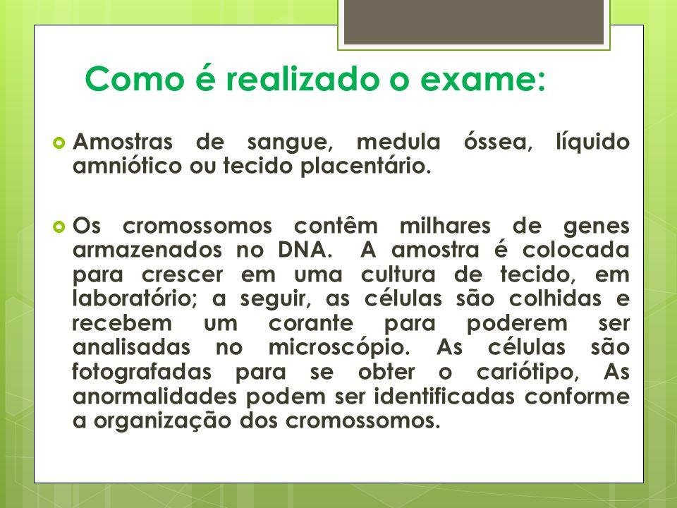 Como é realizado o exame: Amostras de sangue, medula óssea, líquido amniótico ou tecido placentário.