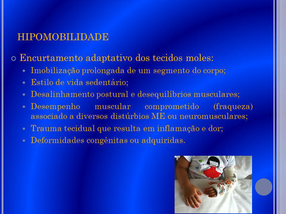 HIPOMOBILIDADE Encurtamento adaptativo dos tecidos moles: Imobilização prolongada de um segmento do corpo; Estilo de vida sedentário; Desalinhamento p