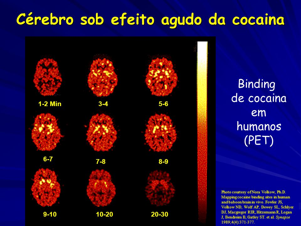 Cérebro sob efeito agudo da cocaina 1-2 Min3-45-6 6-7 7-88-9 9-1010-2020-30 Photo courtesy of Nora Volkow, Ph.D.