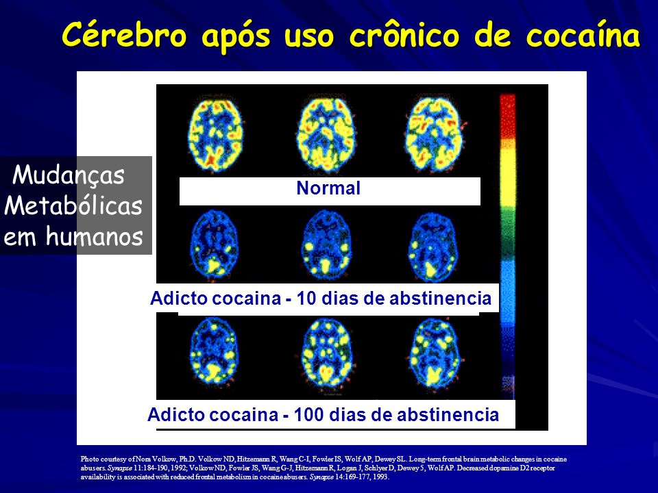 Cérebro após uso crônico de cocaína Normal Adicto cocaina - 10 dias de abstinencia Cocaine Abuser (100 days) Photo courtesy of Nora Volkow, Ph.D.