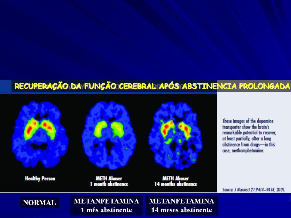 RECUPERAÇÃO DA FUNÇÃO CEREBRAL APÓS ABSTINENCIA PROLONGADA NORMAL METANFETAMINA 1 mês abstinente METANFETAMINA 14 meses abstinente