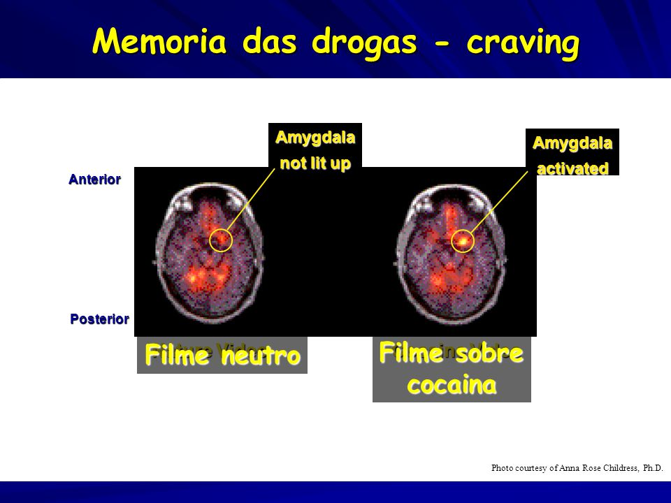 Memoria das drogas - craving Nature Video Cocaine Video Anterior Posterior Amygdala not lit up Amygdala activated Photo courtesy of Anna Rose Childress, Ph.D.