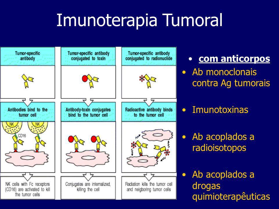 Imunoterapia Tumoral Com citoquinas Imunoestimulação não específica induzida por citoquinas produz células efectoras embora seja necessária a conjução com outro tipo de imunoterapia Activação das LAK após cultura in vitro com IL-2 e infusão no paciente Activação dos TILs, células TCD8+ tratadas como as LAK e depois infusionadas novamente no paciente Activação MAK, isolando monócitos do sangue periférico do doente com o tumor, cultivando-os in vitro e reinjectando-os após activação Com vacinas Imunização tumoral ou com antigénios tumorais, em que os TAAs são mortos ou irradiados ( as células in vitro) e depois de imuniza o paciente- inclusivé DNA dos TAAs em teste Imunização com tumores transfectados, cuja capacidade imunogénica e co-estimulatória é maior na indução de uma resposta CTL Imunização com APCs sensitizadas com TAAs, usando por ex.
