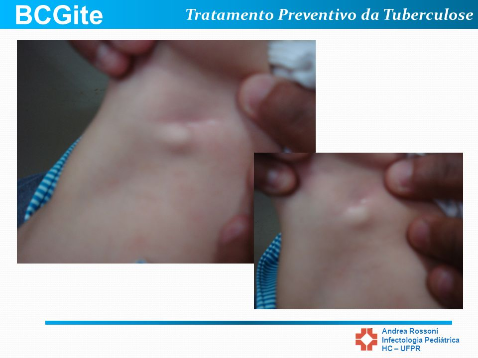 Tratamento Preventivo da Tuberculose Andrea Rossoni Infectologia Pediátrica HC – UFPR BCGite