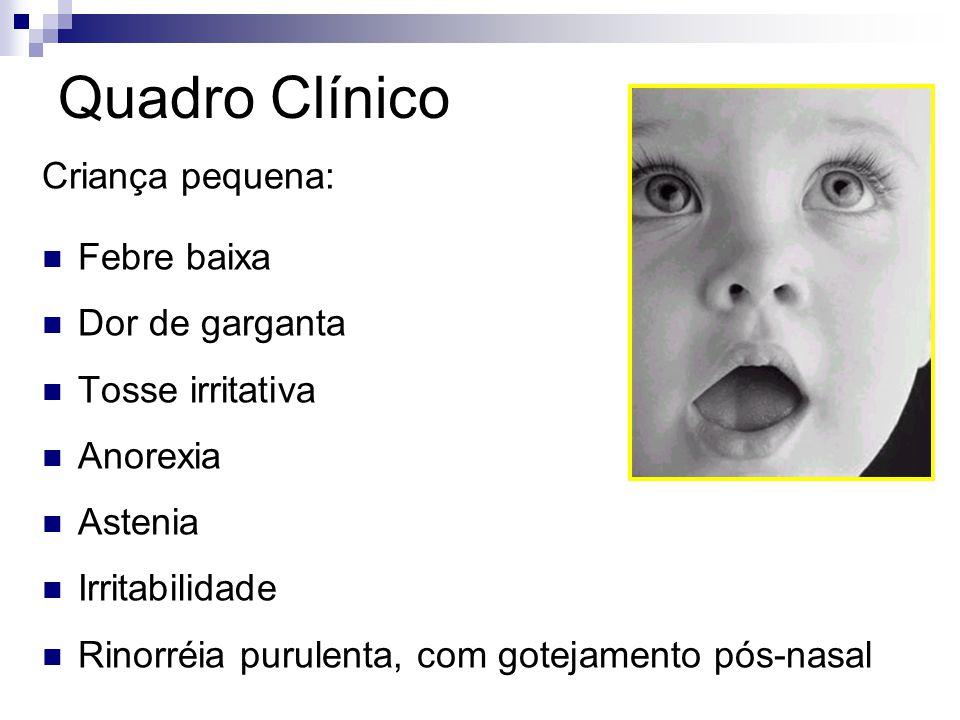 Quadro Clínico Criança pequena: Febre baixa Dor de garganta Tosse irritativa Anorexia Astenia Irritabilidade Rinorréia purulenta, com gotejamento pós-