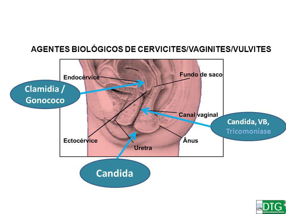 Clamidia / Gonococo Candida Candida, VB, Tricomoniase AGENTES BIOLÓGICOS DE CERVICITES/VAGINITES/VULVITES