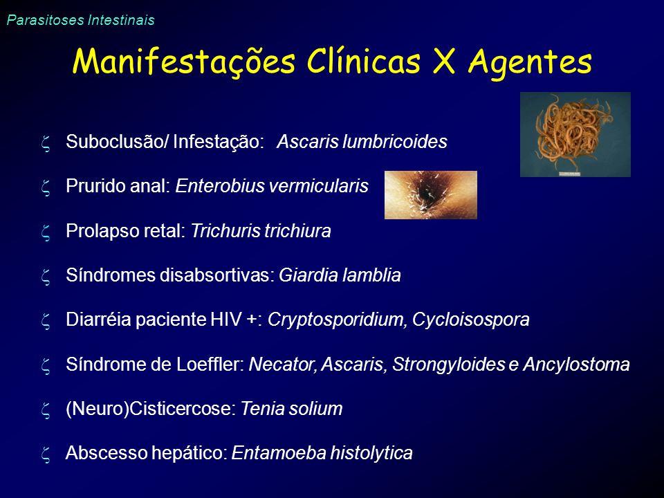 Parasitoses Intestinais Manifestações Clínicas X Agentes Suboclusão/ Infestação: Ascaris lumbricoides Prurido anal: Enterobius vermicularis Prolapso r