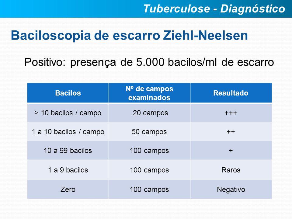 Baciloscopia de escarro Ziehl-Neelsen Positivo: presença de 5.000 bacilos/ml de escarro Tuberculose - Diagnóstico Bacilos Nº de campos examinados Resu
