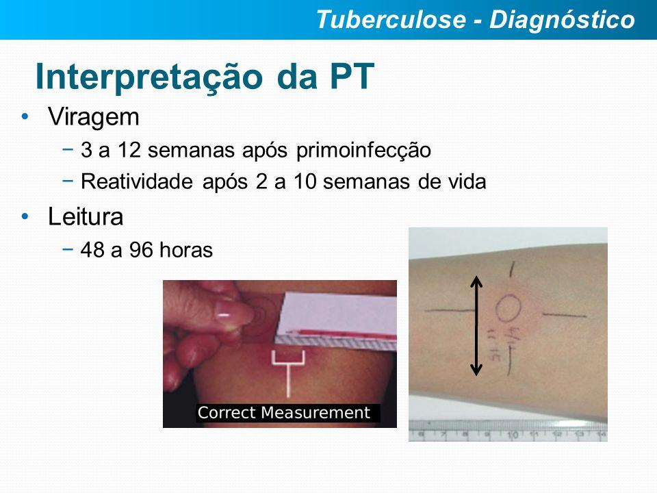 Viragem 3 a 12 semanas após primoinfecção Reatividade após 2 a 10 semanas de vida Leitura 48 a 96 horas Tuberculose - Diagnóstico Interpretação da PT