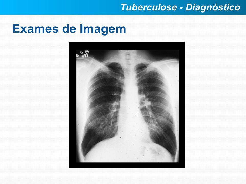 Exames de Imagem Tuberculose - Diagnóstico