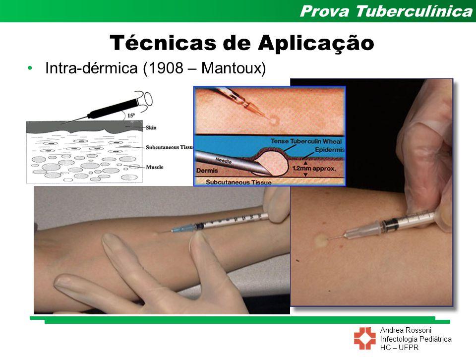 Andrea Rossoni Infectologia Pediátrica HC – UFPR Prova Tuberculínica Técnicas de Aplicação Intra-dérmica (1908 – Mantoux)