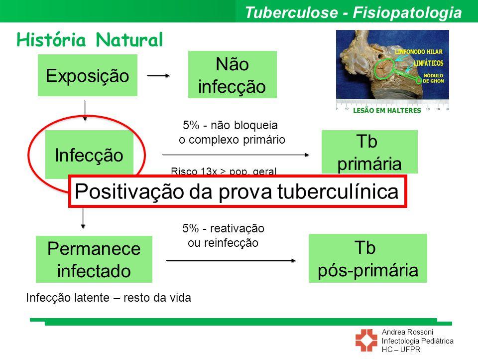 Andrea Rossoni Infectologia Pediátrica HC – UFPR Prova Tuberculínica Exposição Infecção Não infecção Permanece infectado História Natural Risco 13x >