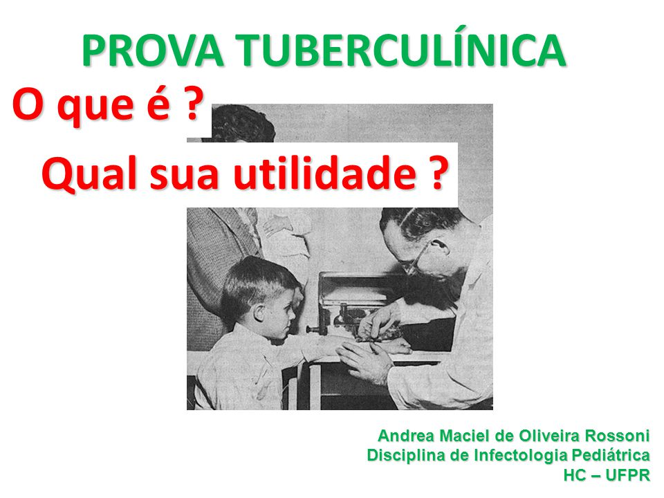 Andrea Rossoni Infectologia Pediátrica HC – UFPR Prova Tuberculínica Risco estimado de desenvolvimento de TB ativa em pessoas infectadas Fator de risco Risco estimado Aids110-170 HIV50-110 Transplantados20-74 Silicose30 Insuf Renal cronica (hemodiálise) 10-25 Ca cabeça e pescoço16 Infecção recente M.tb (<2a)15 RX anormal (cicatriz em LS)6-19 Inibidores de alfa-TNF1,7-9 *Lobue, P and Menzies, D.