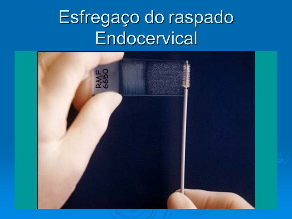 Esfregaço do raspado Endocervical
