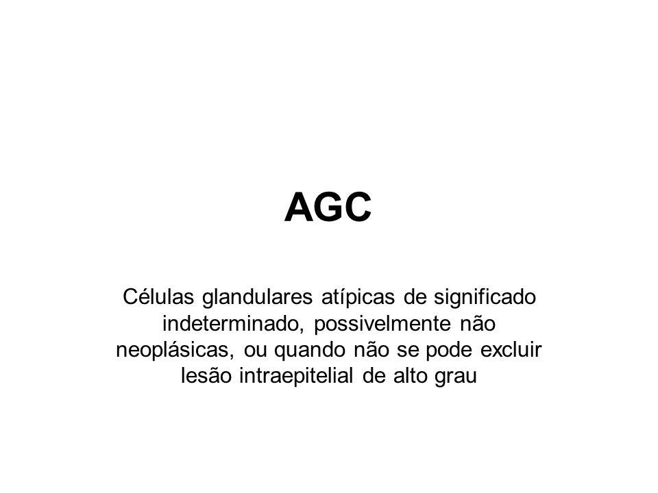 AGC Células glandulares atípicas de significado indeterminado, possivelmente não neoplásicas, ou quando não se pode excluir lesão intraepitelial de alto grau