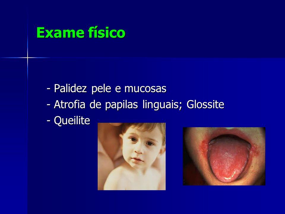 Exame físico - Palidez pele e mucosas - Palidez pele e mucosas - Atrofia de papilas linguais; Glossite - Atrofia de papilas linguais; Glossite - Queilite - Queilite