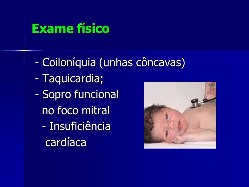 Exame físico - Coiloníquia (unhas côncavas) - Coiloníquia (unhas côncavas) - Taquicardia; - Taquicardia; - Sopro funcional - Sopro funcional no foco mitral no foco mitral - Insuficiência - Insuficiência cardíaca cardíaca