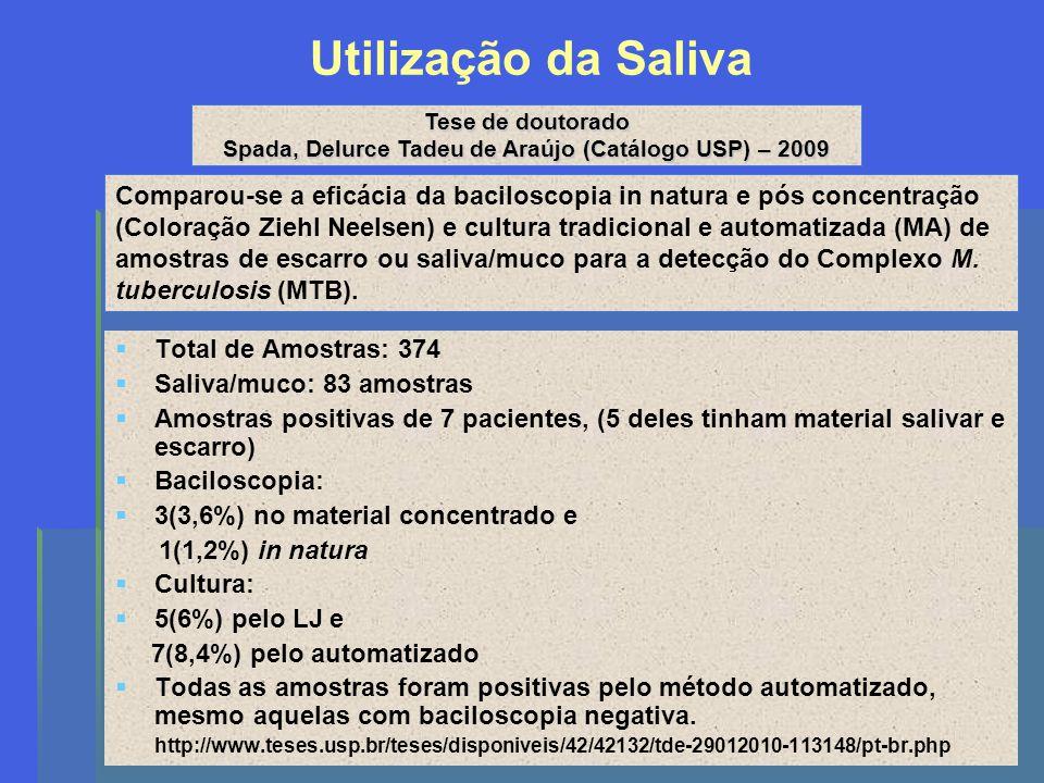 Utilização da Saliva Total de Amostras: 374 Saliva/muco: 83 amostras Amostras positivas de 7 pacientes, (5 deles tinham material salivar e escarro) Ba