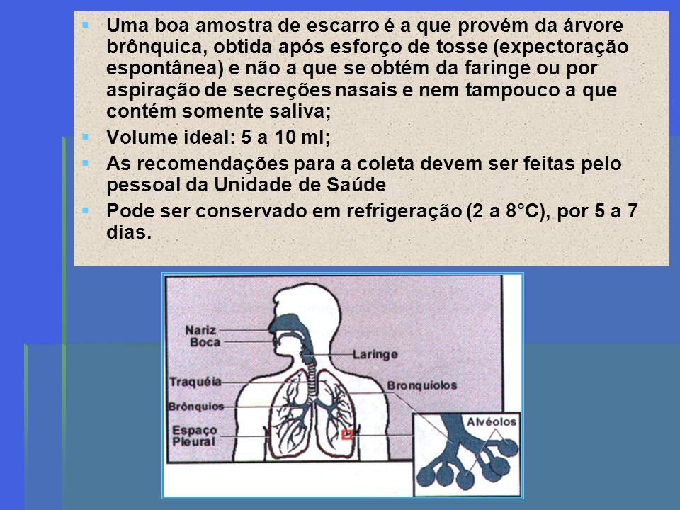 Características do pote de coleta e do escarro