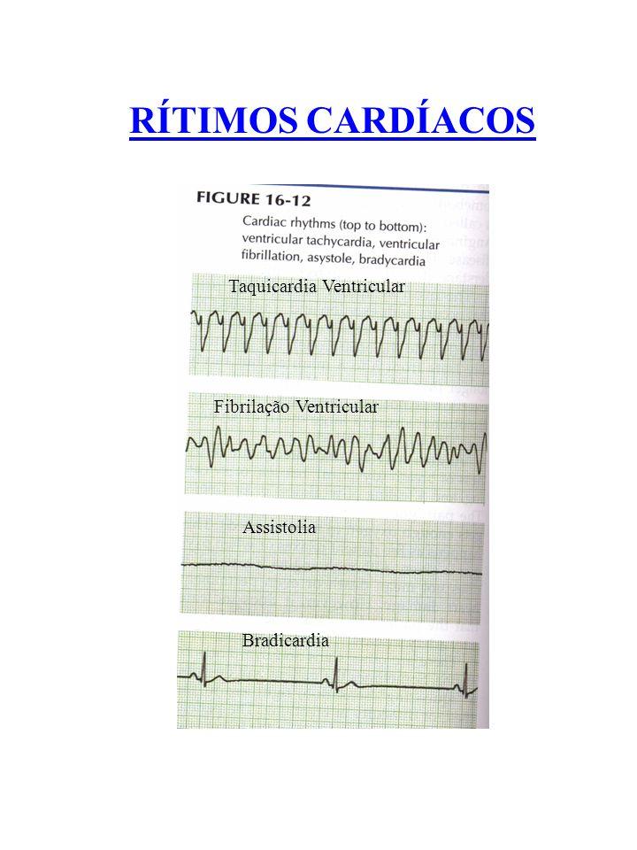 RÍTIMOS CARDÍACOS Taquicardia Ventricular Fibrilação Ventricular Assistolia Bradicardia