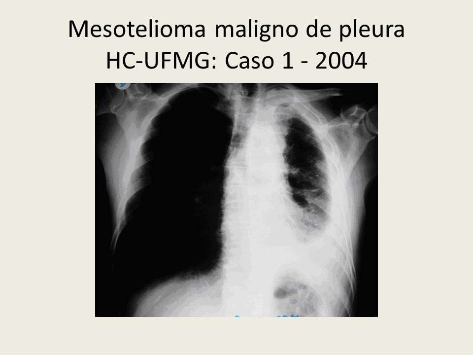 Mesotelioma maligno de pleura HC-UFMG: Caso 1 - 2004
